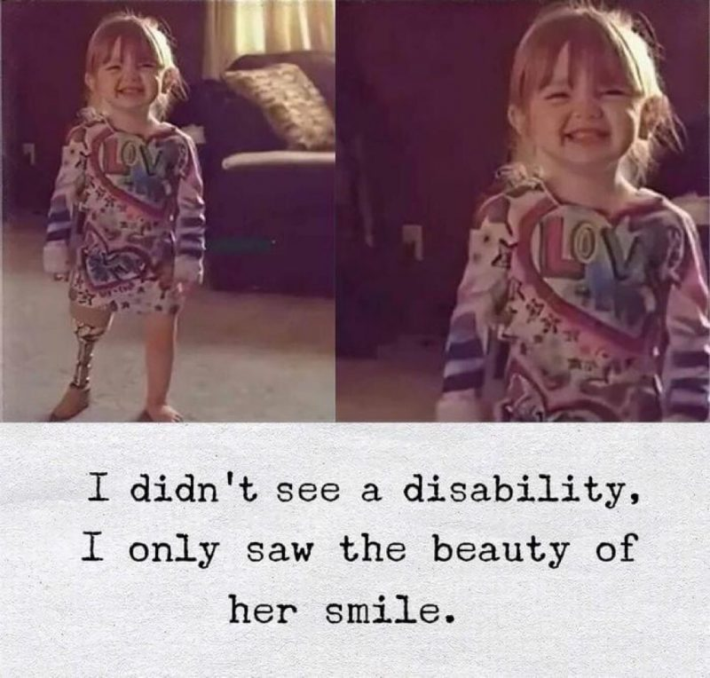 adorable smiling little girl with disability
